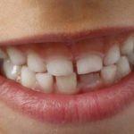 Zahnimplantate bei Kindern - wann  sinnvoll?