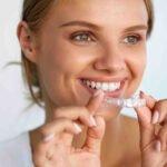 Aligner - die unsichtbare Zahnspange
